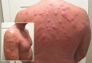 Аллергия на укусы клопов